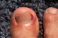 Possible Causes Of An Ingrown Toenail