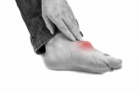 Gout Attacks May Be Painful