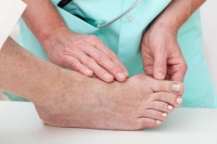 Possible Causes of Bunions