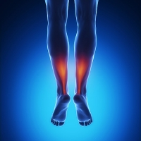 What to Expect During Achilles Tendon Surgery Recovery
