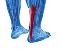 Possible Treatments for an Achilles Tendon Injury
